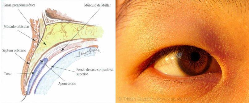 ¿Por qué los asiáticos tienen los ojos rasgados? - 5